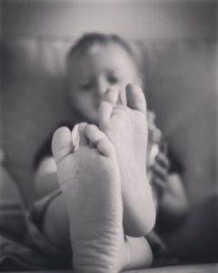 Feet of a child treated for talipes