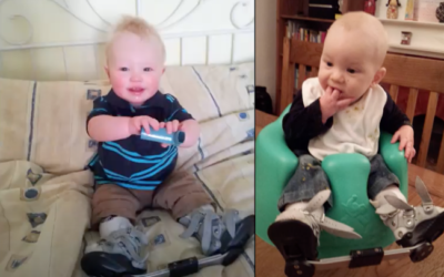 George and Henry's clubfoot/talipes story