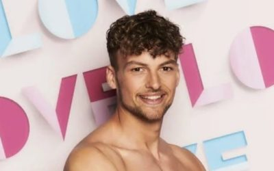 Hugo Hammond, first disabled Love Island star, has clubfoot