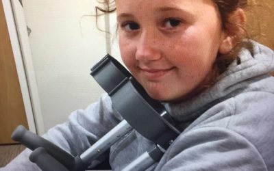 Lauren's story – diagnosed with Bilateral Slipped Upper Femoral Epiphysis (SUFE)